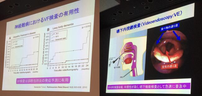 ☆第6回大阪・豊能地域における神経難病医療ネットワーク検討会④