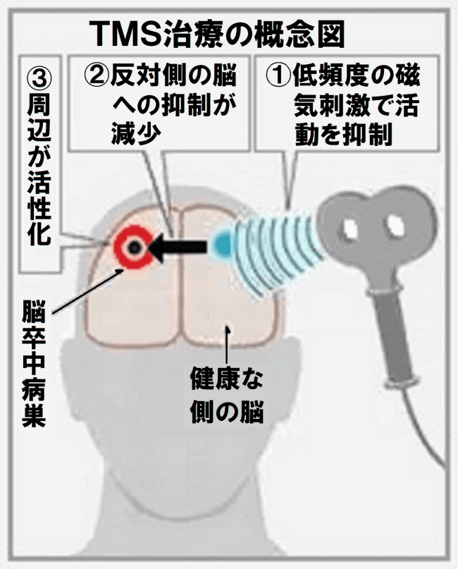 TMS 図2 高画質